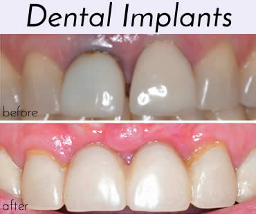 smile-gallery-dental-implants